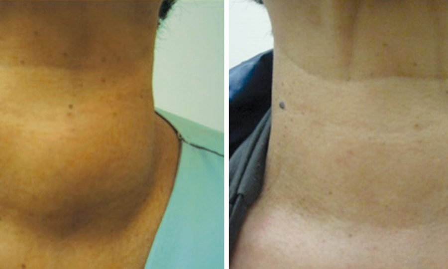 Thyroid No Surgery: Very Large Benign Nodule Treated with combination Ethanol/Radiofrequency Ablation