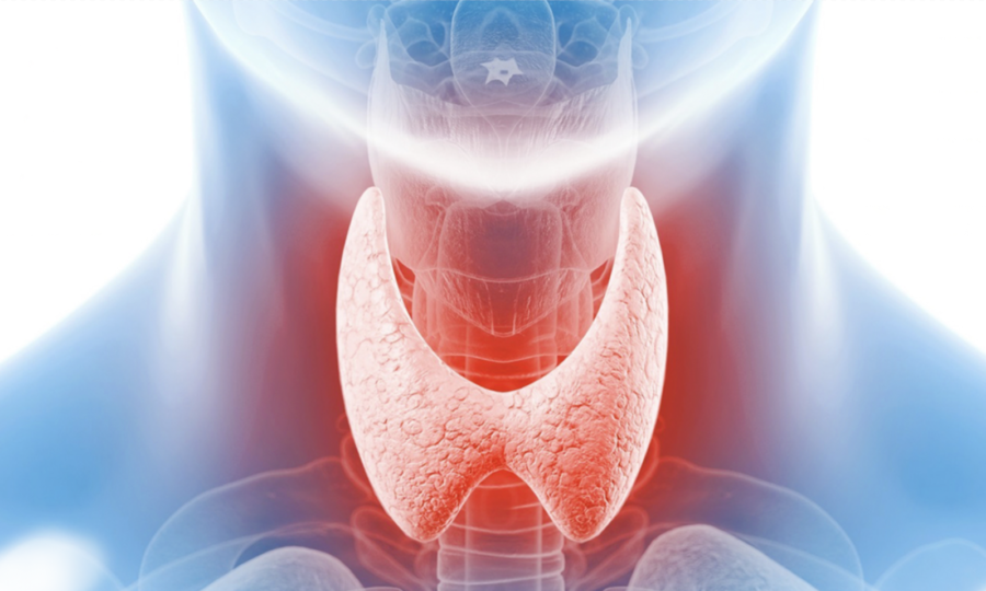 Long-Term Outcomes After RFA of Thyroid Nodules